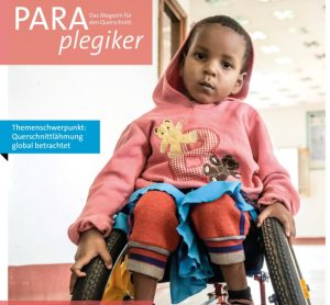 Theresia our little Spina Bifida Warrior
